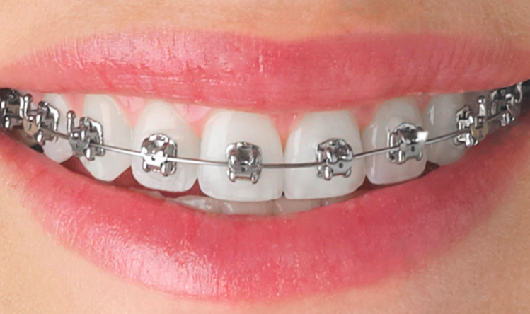 Orthodontic Treatment | Wild for a Smile Children's Dentistry