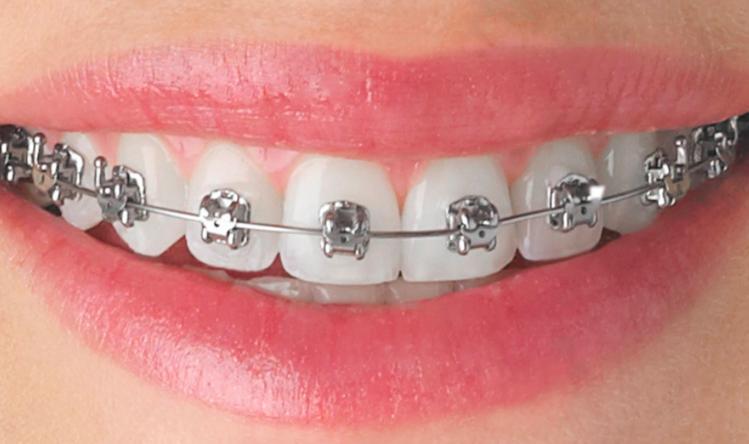 Orthodontic Treatment | Wild for a Smile Children's Dentistry
